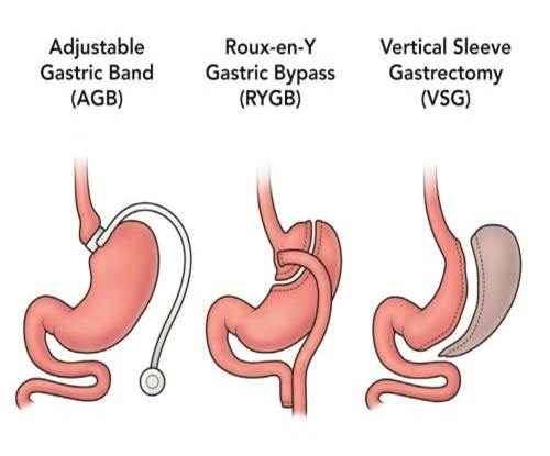 Image that depicts three types of bariatric surgery: AGB, RYGB, and VSG